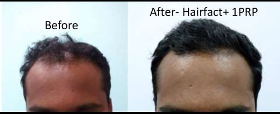 PRP Hair Transplantation Treatment
